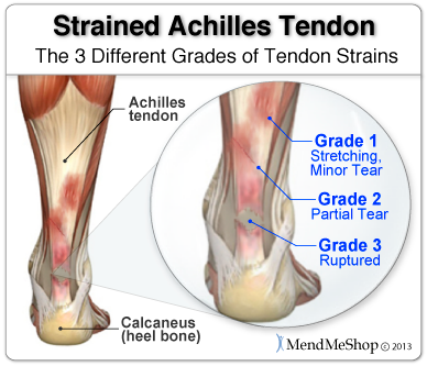 Types of Tendon Strains