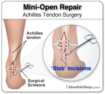 During a mini-open Achilles tendon repair surgery, 2 to 8 small stab incisions are made to pull the edges of the tendon tear together and suture the torn edges to repair the damage.