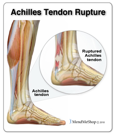 Some people might have Achilles tendonitis but think they have foot tendonitis