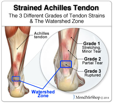 The Achilles tendon watershed zone is 2 to 4 cm above the heel bone.