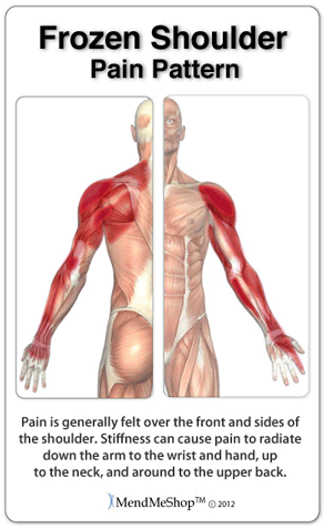 Shoulder Trigger Points