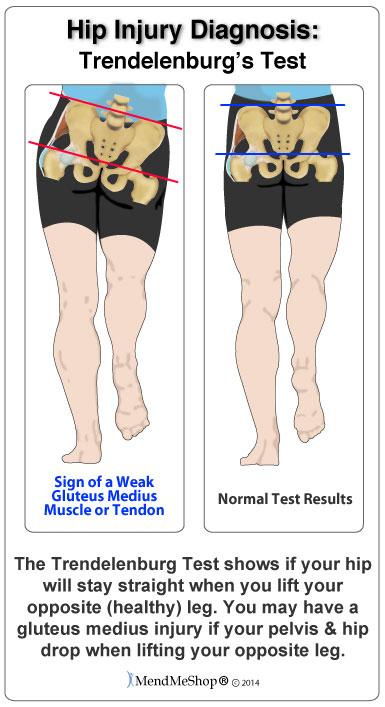 Tendonitis after hip surgery