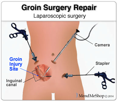 laparoscopic Adductor Tendinitis surgery repair