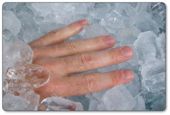 using cold for pain relief