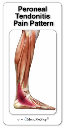 Peroneal Tendonitis pain pattern
