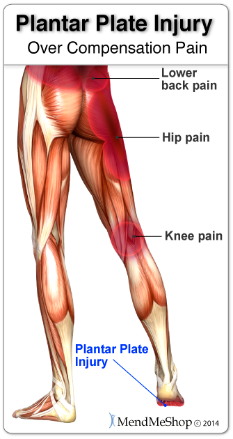 overcompensation pain because of a plantar plate pain is an uphill battle