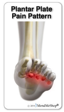 Where you feel plantar plate pain in your foot.