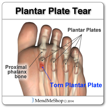 Painful plantar plate tears T•Shellz Wrap<sup>®</sup> home treatment