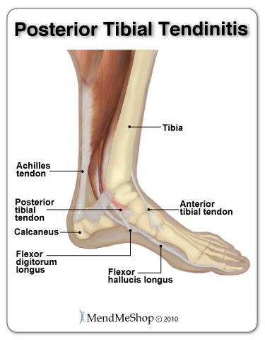 Posterior Tibial Tendonitis = An overuse injury affecting the inside arch of the foot.