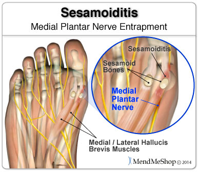 Sometimes sesamoiditis pain is a nerve entrapment injury.