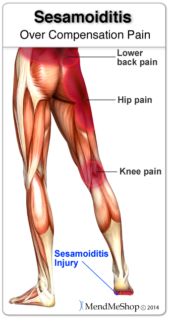 Long-term limping or shuffling with a sesamoiditis injury may lead to pain in the knee, hip and/or lower back.