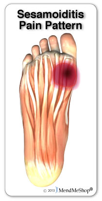Sesamoiditis will usually present with pain in the ball of the foot.