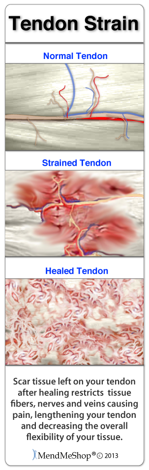 healing your ankle tendonitis