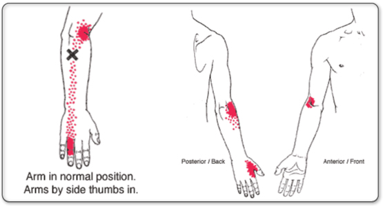 Tennis Elbow pain patterns