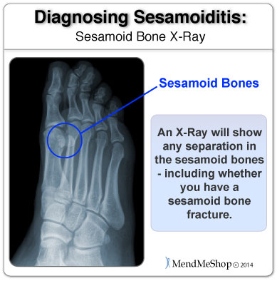 An x-ray will clearly show the sesamoid bones and any separation or fracture in those bones.